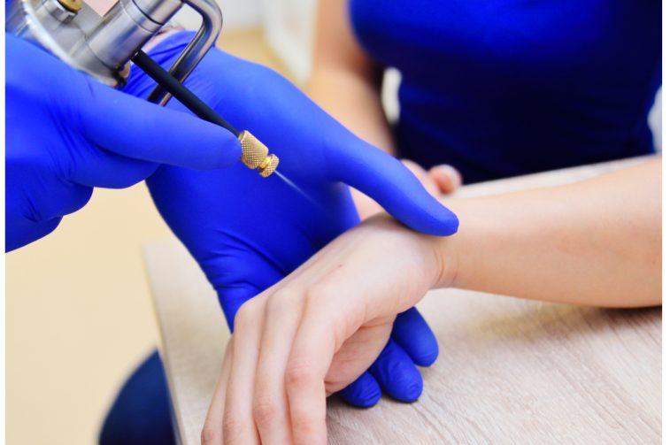 Crioterapia e criocirurgia